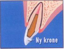 sementere tannkrone bedøvelse