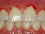 Ved blødende tannkjøtt kan det føles ømt og betent rundt tennene. I tilfeller kan det også være blod ved tannfeste.