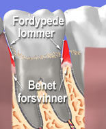 Tannløsning er en folkesykdom som innebærer at tannbenet til slutt løses opp. Ved Tannlege Svendsrud får du behandling for periodontitt.