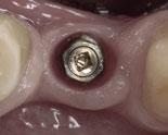 En fikstur er en titanskrue som vokser seg sammen med kjevebenet, og som implantat kan festes i for å erstatte tapt tann.