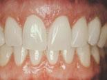Implantatet har erstattet den tapte hjørnetannen og gitt en naturlig og ryddig smil.