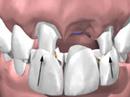 Tannluker kan behandles
